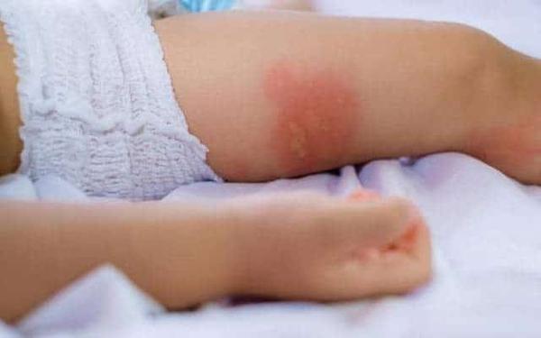 [CHI TIẾT] Muỗi đốt sưng to cứng – Nguy hiểm đối với trẻ nhỏ